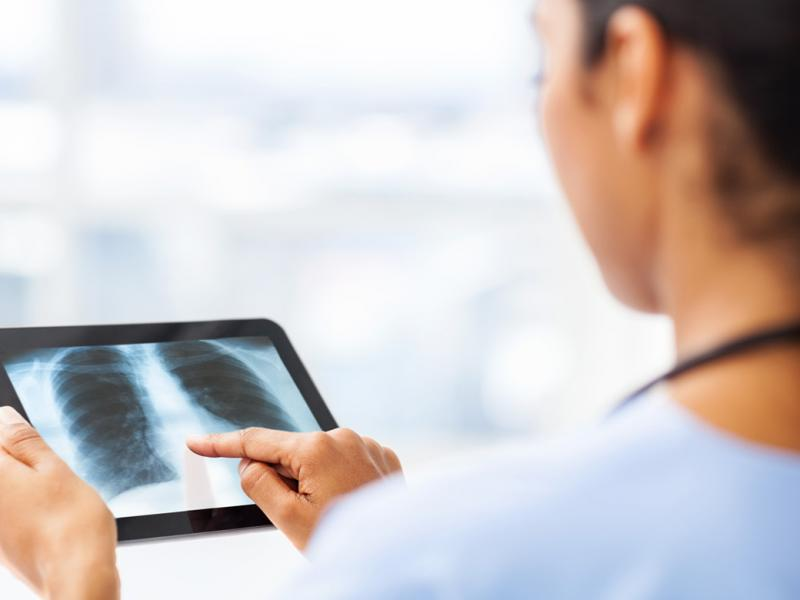 medical student reviews patient xray on tablet