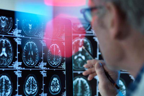Physician reviewing multiple images of a brain scan